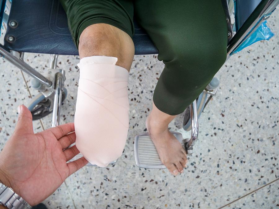 hand holding below-knee amputation with elastic bandaging