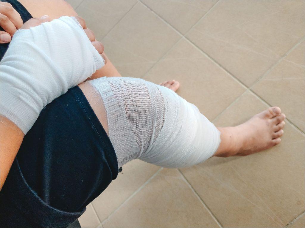 leg injury in a car accident in Austin, TX
